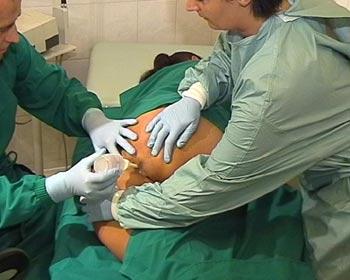 einlauf klistier darmrohr krankenschwester